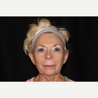 65-74 year old woman treated with Sculptra after 3748701