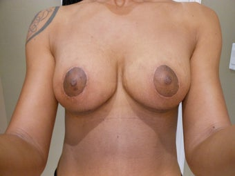 40 year old woman who underwent a mommy makeover using the UBL and a TT with mesh