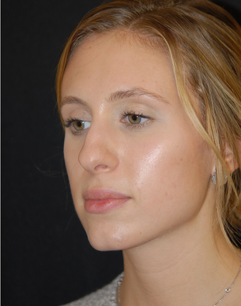18-24 year old woman treated with Non Surgical Nose Job 1782700