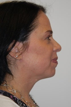 K-Lift™ Non surgical alernative for some sagging necks and faces 1098192