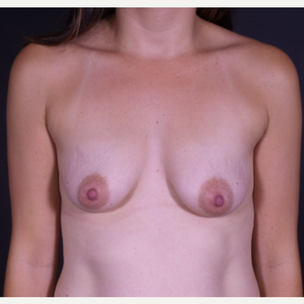 25-34 year old woman treated with Breast Augmentation before 3150021