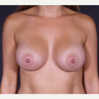 25-34 year old woman treated with Breast Augmentation after 3150021