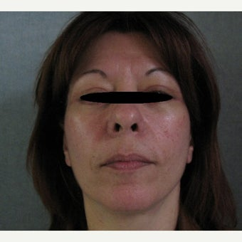 45-54 year old woman treated with Lower Face Lift after 1566600