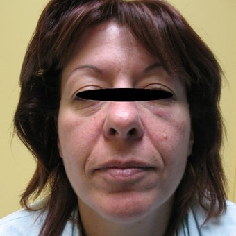 45-54 year old woman treated with Lower Face Lift before 1566600