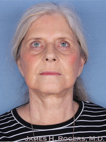 65-74 year old woman treated with Facelift after 2085780