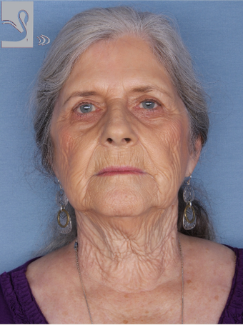 65-74 year old woman treated with Facelift before 2085780