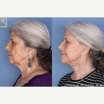 65-74 year old woman treated with Facelift 2085780