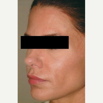 35-44 year old woman treated with Rhinoplasty after 3406246
