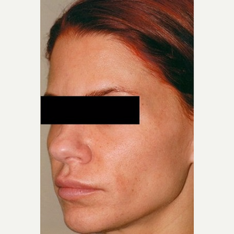 35-44 year old woman treated with Rhinoplasty before 3406246