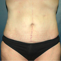 45 year old woman treated with Tummy Tuck after 3578523