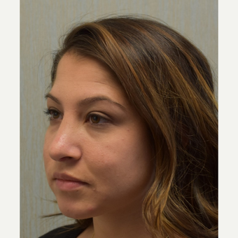 18-24 year old woman treated with Rhinoplasty after 3408537