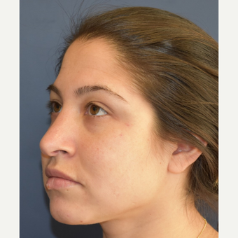 18-24 year old woman treated with Rhinoplasty before 3408537