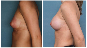 18-24 year old woman treated with Breast Augmentation before 3002090