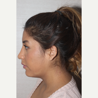 18-24 year old woman treated with Rhinoplasty after 3130029