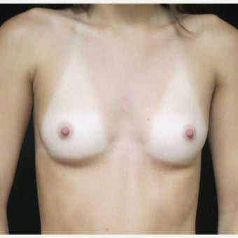 18-24 year old woman treated with Sientra Breast Implants before 1769793