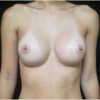 18-24 year old woman treated with Sientra Breast Implants after 1769793