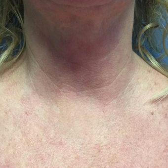 45-54 year old woman treated with Active FX after 3054382