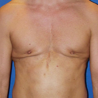 Pec Implants before 1554801