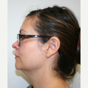 35-44 year old woman treated with Chin Liposuction before 1549121