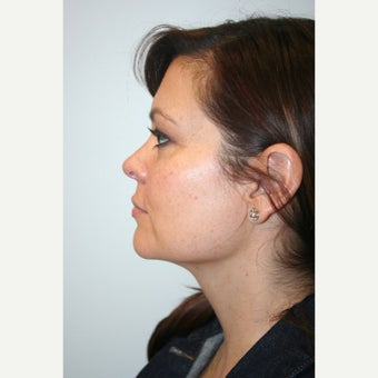 35-44 year old woman treated with Chin Liposuction after 1549121