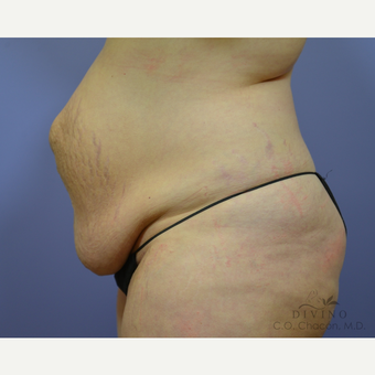 35-44 year old woman treated with Tummy Tuck before 3422041