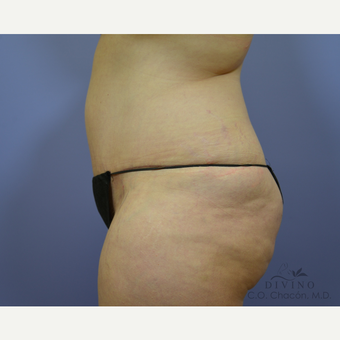 35-44 year old woman treated with Tummy Tuck after 3422041