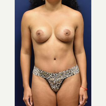 35-44 year old woman treated with Breast Lift with Implants after 3348695