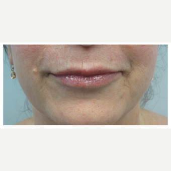 45-54 year old woman treated with Restylane Silk after 3028368