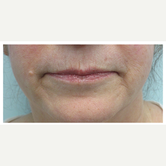 45-54 year old woman treated with Restylane Silk before 3028368