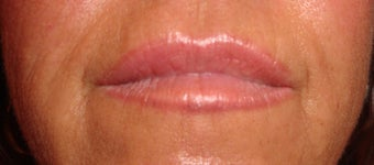 Lip augmentation after 875975