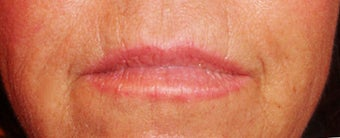 Lip augmentation before 875975