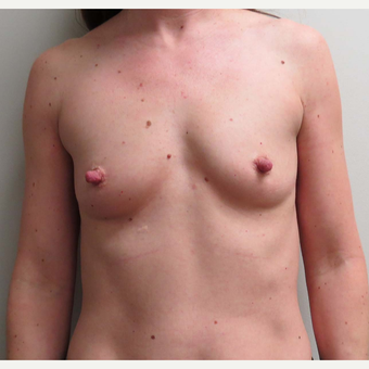 Mentor Textured Shaped Breast Implants for this 37 Year Old Woman before 2886201