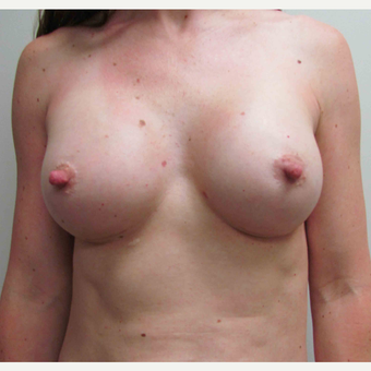 Mentor Textured Shaped Breast Implants for this 37 Year Old Woman after 2886201