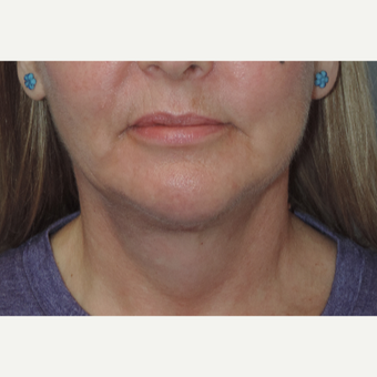 45-54 year old woman treated with Fat Transfer to the Cheeks after 3448440