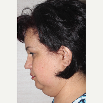 55-64 year old woman treated with Facelift before 3741331