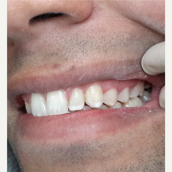 35-44 year old man treated with Smile Makeover after 3069582