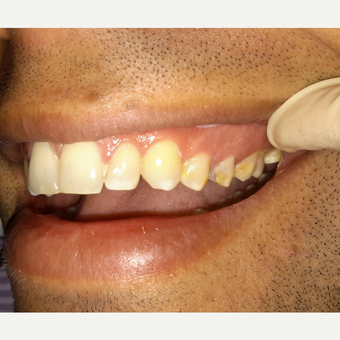 35-44 year old man treated with Smile Makeover before 3069582