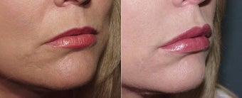 Juvederm Lip Augmentation before 223972