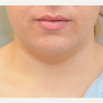 36 year old woman treated with Chin Liposuction before 3682949