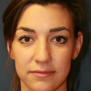 18-24 year old woman treated with Rhinoplasty before 3559771
