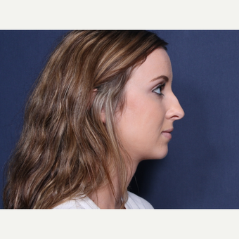 18-24 year old woman treated with Rhinoplasty (view 2 of 2) before 3103247