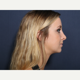 18-24 year old woman treated with Rhinoplasty (view 2 of 2) after 3103247