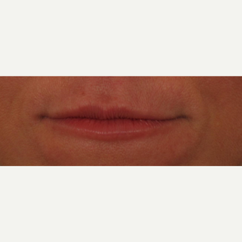 45-54 year old woman treated with Voluma for lip augmentation before 3494010