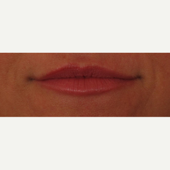 45-54 year old woman treated with Voluma for lip augmentation after 3494010