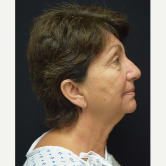 65-74 year old woman treated with Facelift before 3372485
