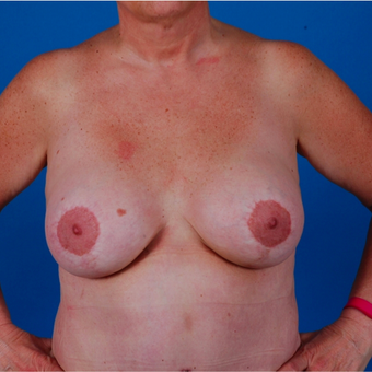 55-64 year old woman treated with Breast Augmentation after 3583327