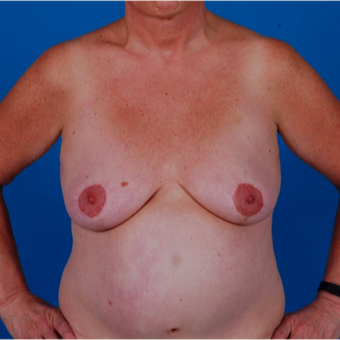 55-64 year old woman treated with Breast Augmentation before 3583327