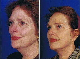Face and necklift, Superficial cheeklift, CO2 laser resurfacing before 83154