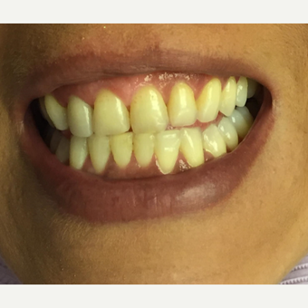 25-34 year old woman treated with Zoom Whitening before 2931251