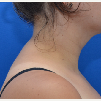 Buffalo Hump Reduction with Liposculpture after 3804103